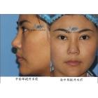 轻松减掉十岁:眼苔再造+面部整体年轻化整形