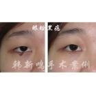 眼睑黑痣手术前后对比
