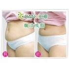 中年女性胃腹腰胯吸脂