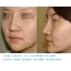 隆鼻修复案例对比照片