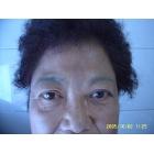 玻尿酸眉间纹充填