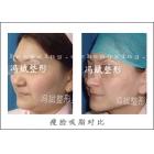面部吸脂塑形术