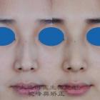 驼峰鼻整形手术实例