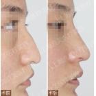 鹰钩鼻(鼻尖下垂)综合整形手术对比