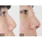 驼峰鼻合并鼻头肥大整形手术前后对比