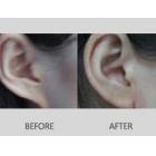 耳垂整形修复案例分享