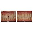 牙齿缺损的全瓷冠美容修复
