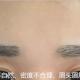 令人无语的植眉毛失败如何修复