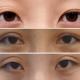 美之峰解灿院长——有关双眼皮修复 你不知道的一些事