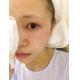 我在上海玫瑰祛斑项目:光子嫩肤+c6祛斑+去痣花费:3200很小的时候脸上就有斑了,一直以来都对自己脸上的...
